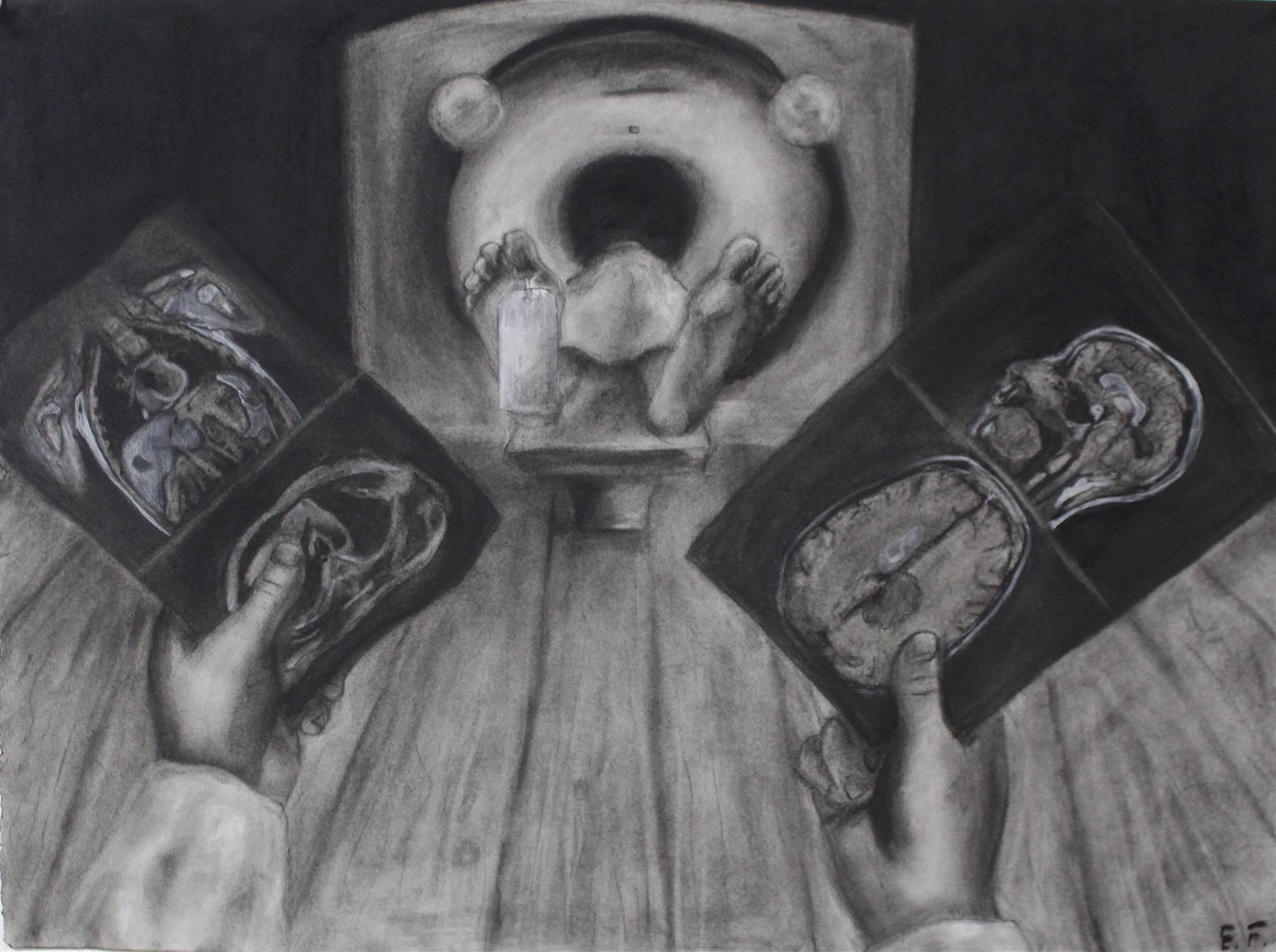 Living Corpse, Evan Forsyth